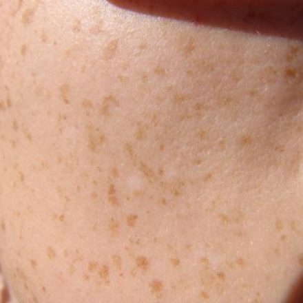 Knowledge Is Cure; Know About Skin Cancer Symptoms And Get Rid Of Ignorance!